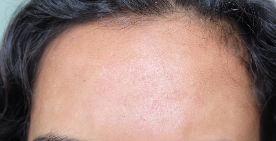 forehead discolouration accutane month 5
