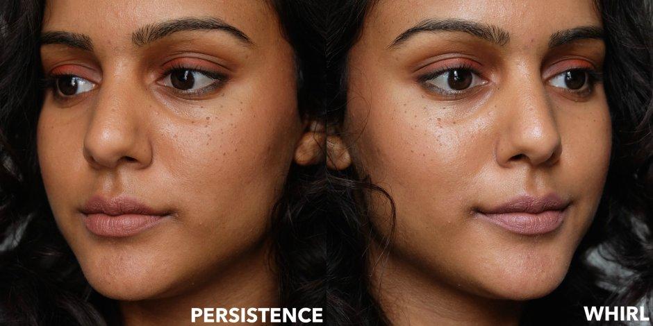 persistence vs. whirl on dark skin